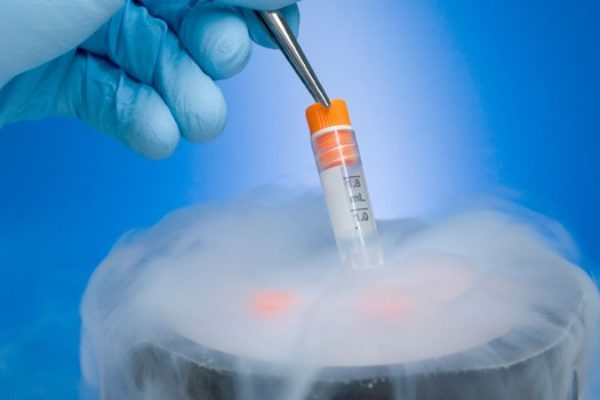 Células madre, lo que deben saber los padres